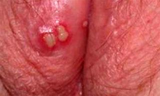 Герпесные пузыри на половой губе