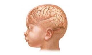 Нормальная форма черепа