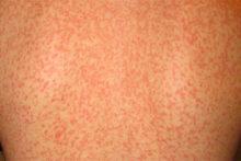 Сыпь при инфекционном мононуклеозе