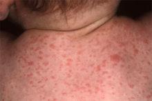 Сыпь детской Розеолы на спине и шее