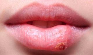 Герпетическая корочка на губе