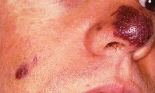 Саркома Капоши на лице