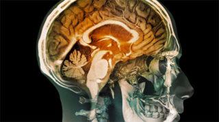 Герпес головного мозга (герпесный энцефалит): симптомы и лечение