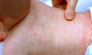 Сыпь мононуклеоза у детей