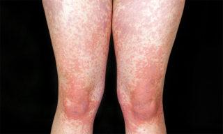 Высыпания мононуклеоза на ногах