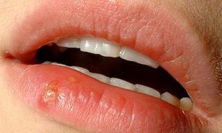 Острая стадия герпеса на губе