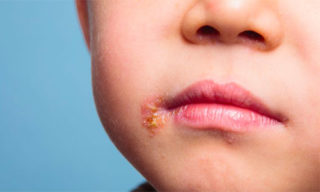 Герпес в уголке губы у ребенка