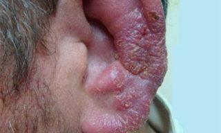Опоясывающий лишай на ушной раковине