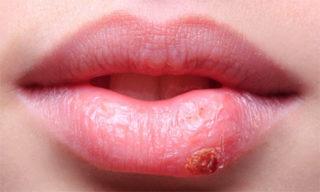 Герпес на губе в стадии заживления