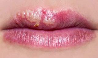 Простуда на губах в стадии обострения