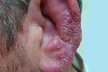 Ушная форма герпеса зостер