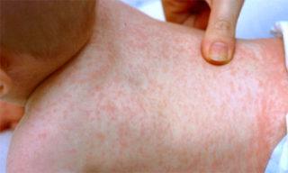 Сыпь при детской розеоле