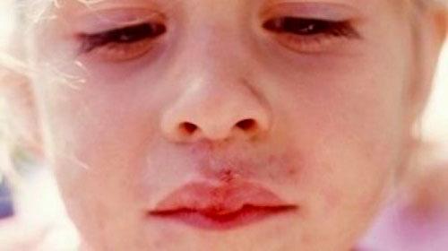 Лечение герпеса на губе у ребенка