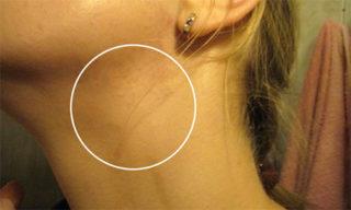Лимфатический узел при мононуклеозе у взрослого