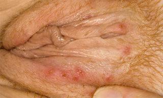 Герпес на половой губе