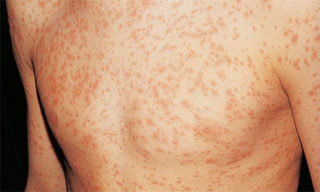 Сыпь на антибиотики при мононуклеозе