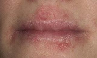 Герпетический дерматит на лице
