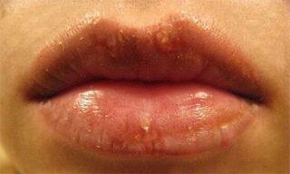 Простуда на губах после татуажа
