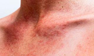 Сыпь при мононуклеозе на шее