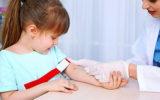 Анализ на мононуклеоз у детей