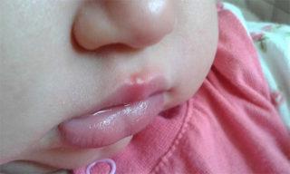 Герпес 1 типа на губе у ребенка