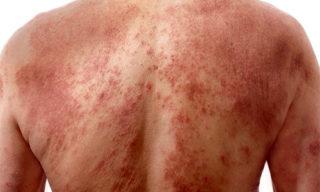 Вирус герпеса -опоясывающий лишай