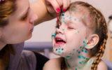 Лечение ветрянки у ребёнка