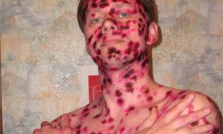 Тело в Фукорцине